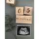 Baby age blocks / Milestone blocks.